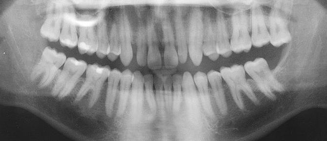 Blackburn Shoppes Dental Centre Wisdom Teeth Blackburn